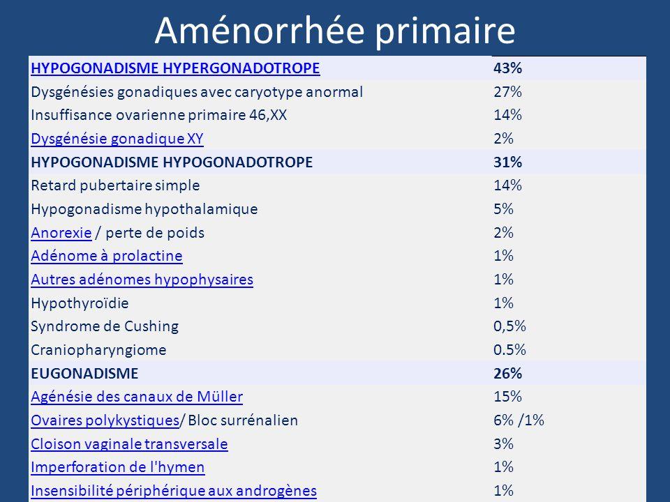 Aménorrhée primaire HYPOGONADISME HYPERGONADOTROPE 43%