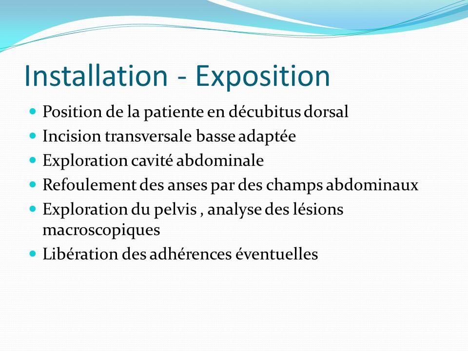 Installation - Exposition
