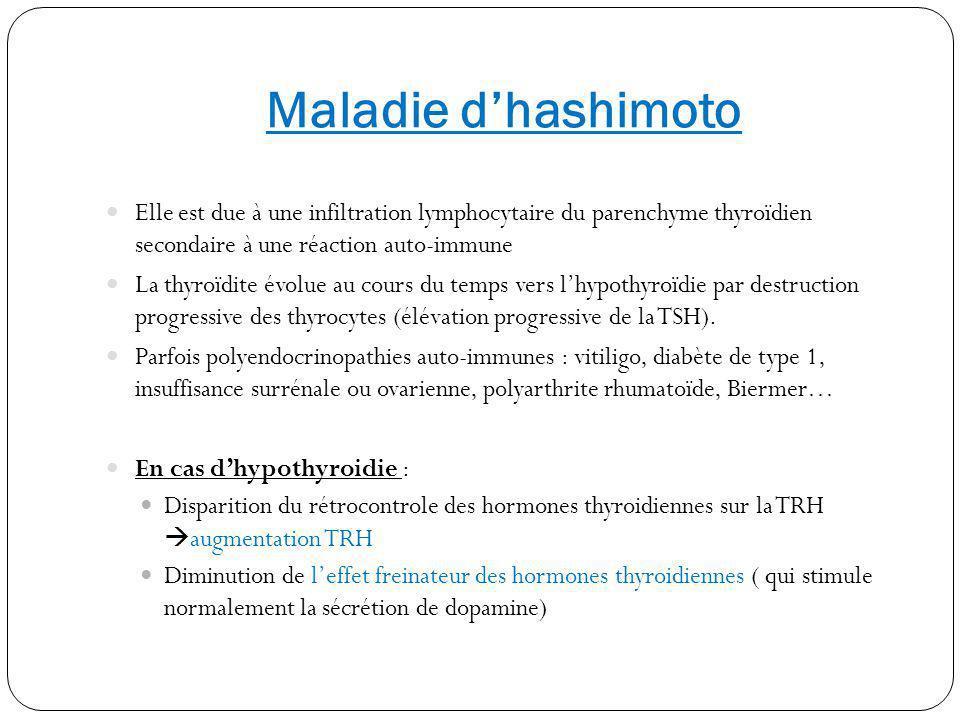 Maladie d'hashimoto Elle est due à une infiltration lymphocytaire du parenchyme thyroïdien secondaire à une réaction auto-immune.