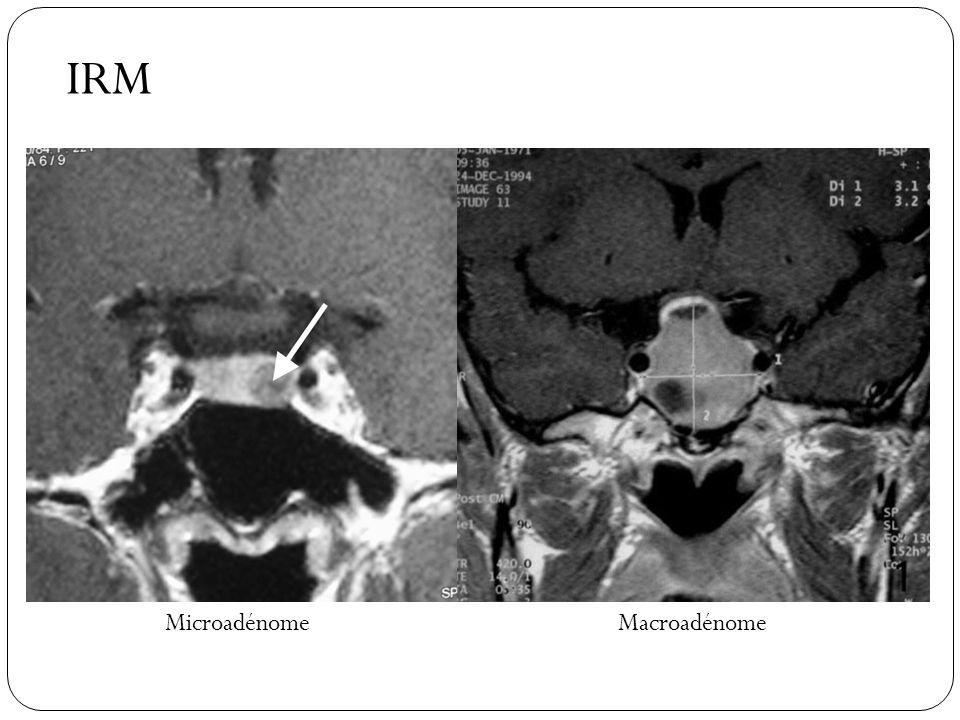 IRM Microadénome Macroadénome