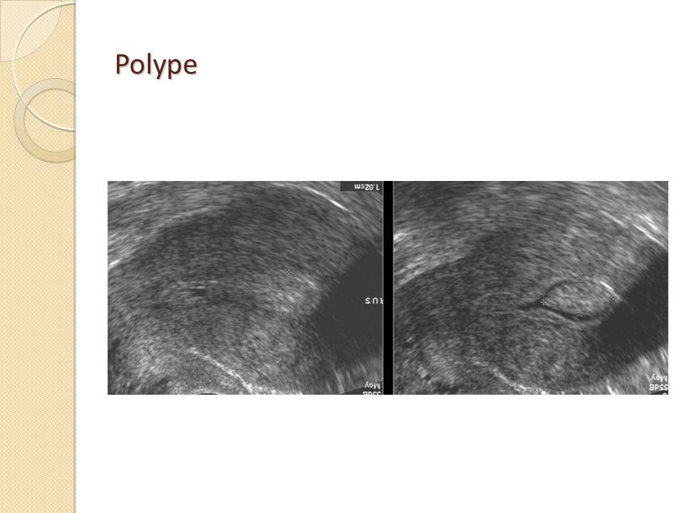 Polype