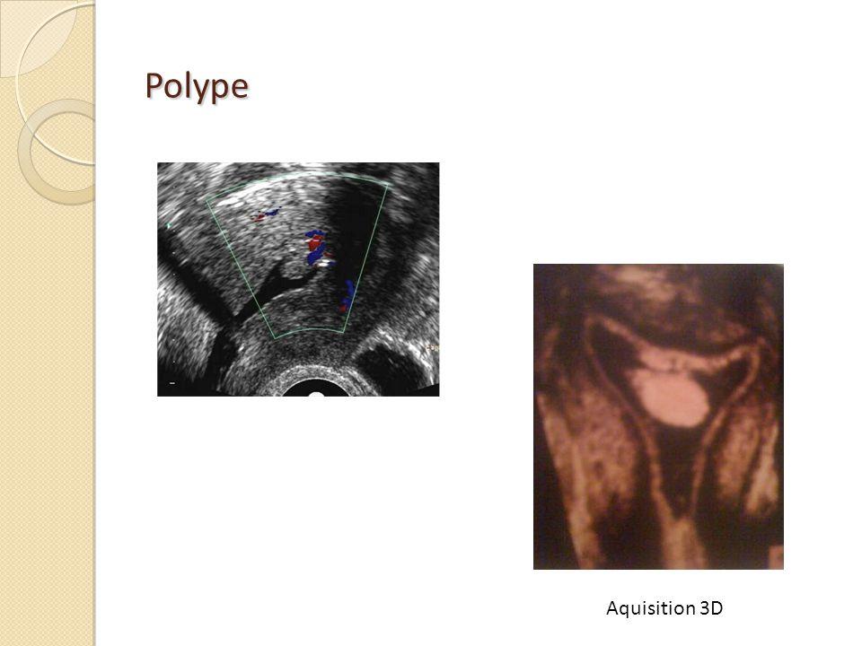 Polype Aquisition 3D