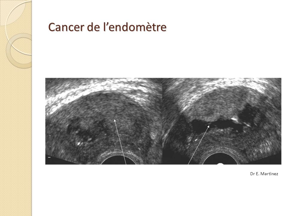 Cancer de l'endomètre Dr E. Martinez