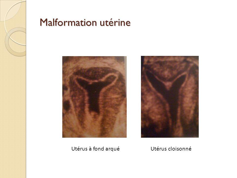 Malformation utérine Utérus à fond arqué Utérus cloisonné