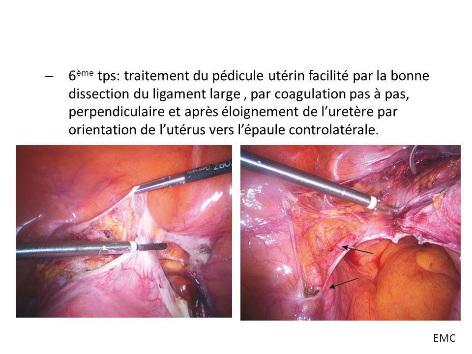hyst rectomie par laparoscopie ppt video online t l charger. Black Bedroom Furniture Sets. Home Design Ideas