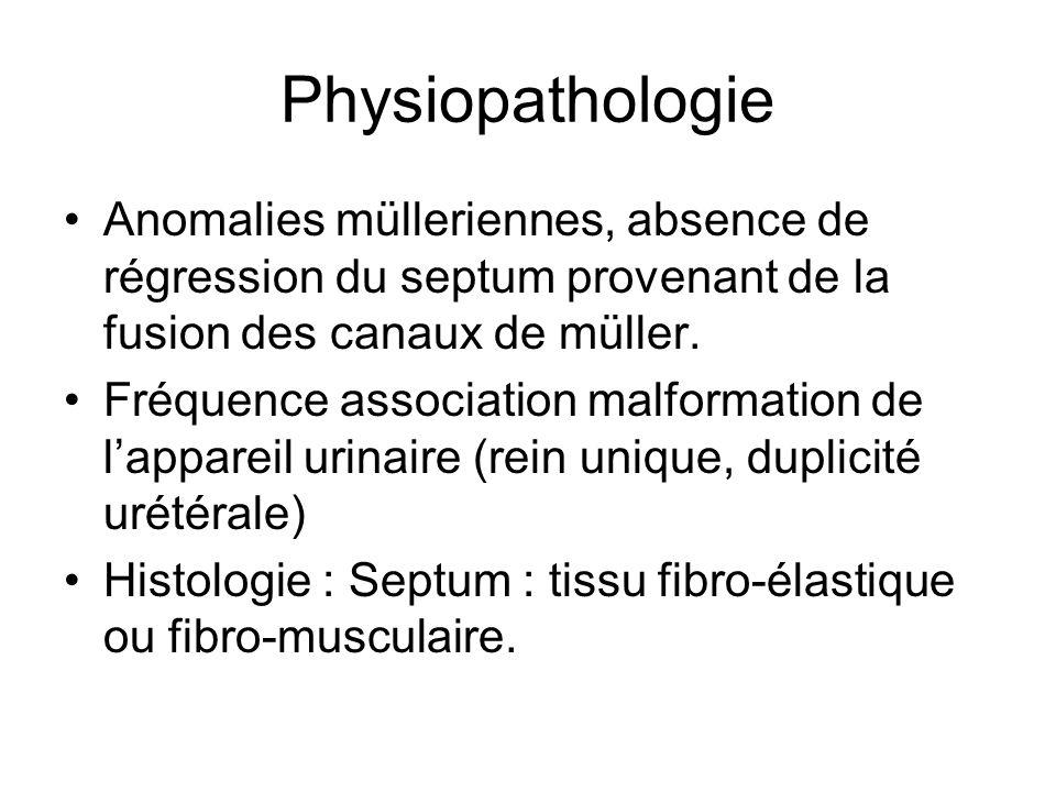 Physiopathologie Anomalies mülleriennes, absence de régression du septum provenant de la fusion des canaux de müller.