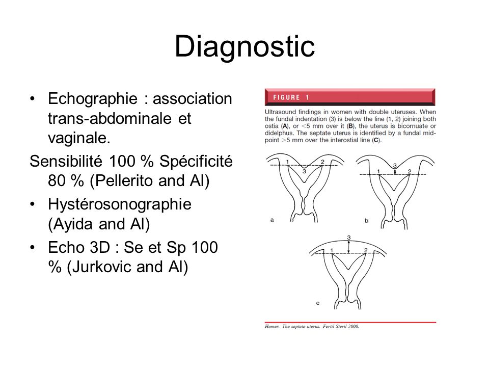 Diagnostic Echographie : association trans-abdominale et vaginale.
