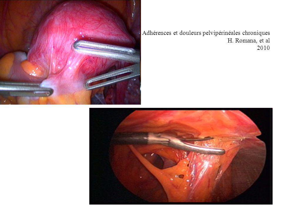 Adhérences et douleurs pelvipérinéales chroniques H. Romana, et al 2010