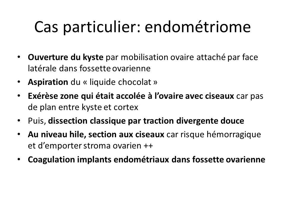 Cas particulier: endométriome
