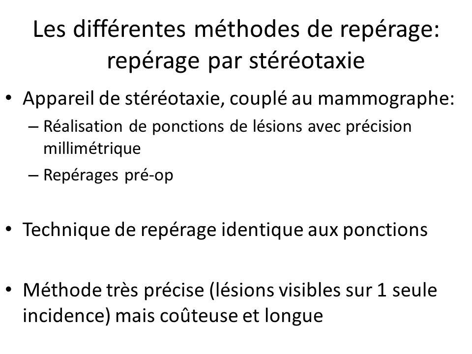 Les différentes méthodes de repérage: repérage par stéréotaxie