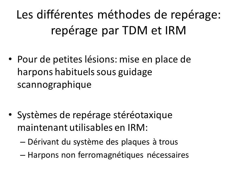 Les différentes méthodes de repérage: repérage par TDM et IRM