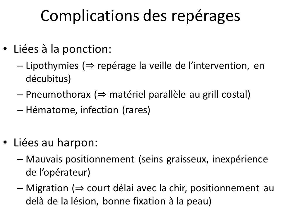 Complications des repérages