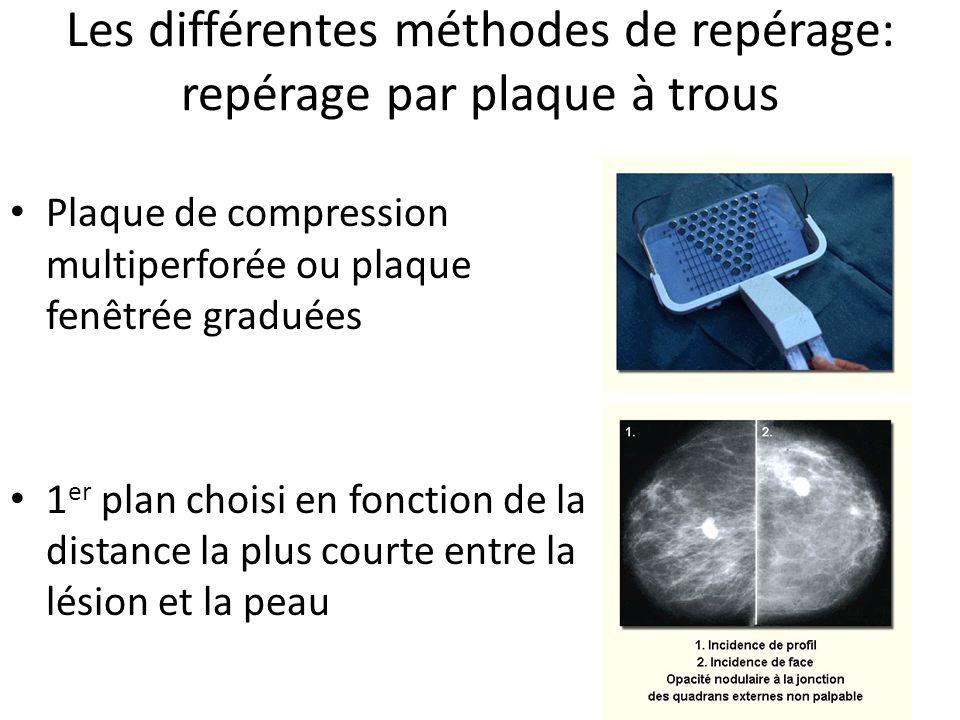Les différentes méthodes de repérage: repérage par plaque à trous