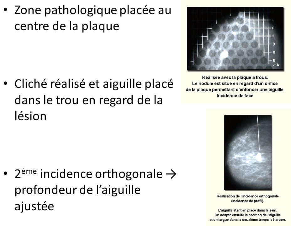 Zone pathologique placée au centre de la plaque