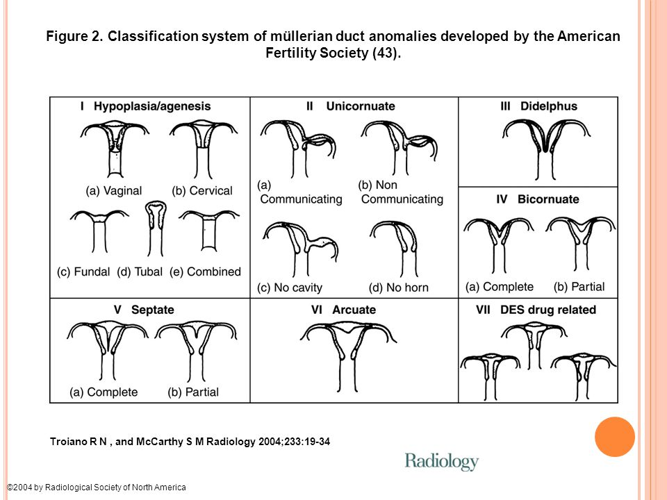 Figure 2. Classification system of müllerian duct anomalies developed by the American Fertility Society (43).
