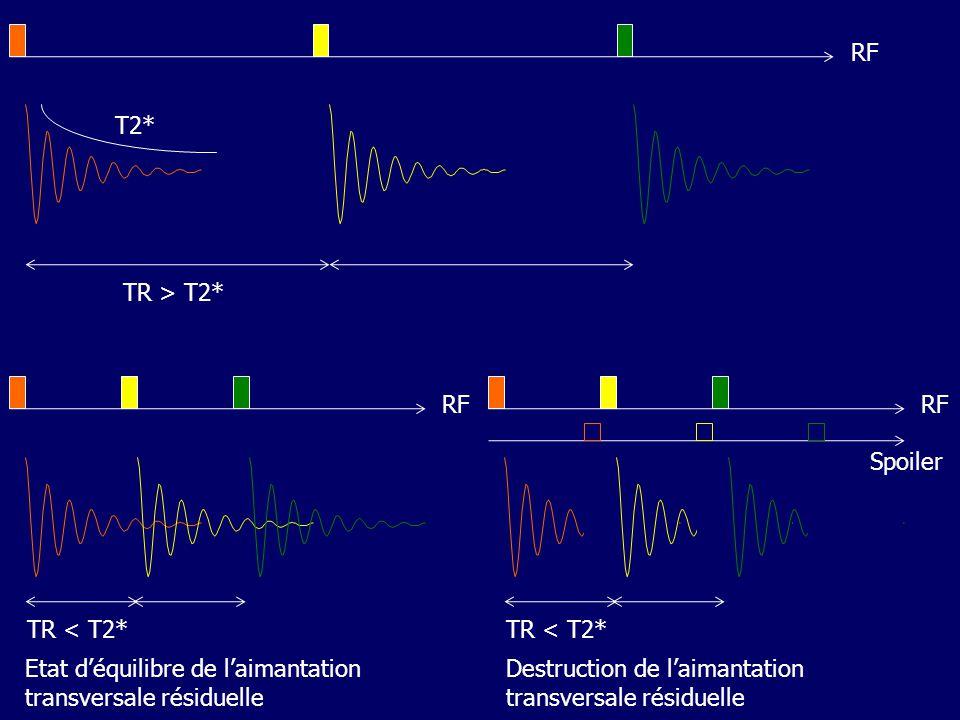 RF T2* TR > T2* TR < T2* RF. Etat d'équilibre de l'aimantation transversale résiduelle. TR < T2*