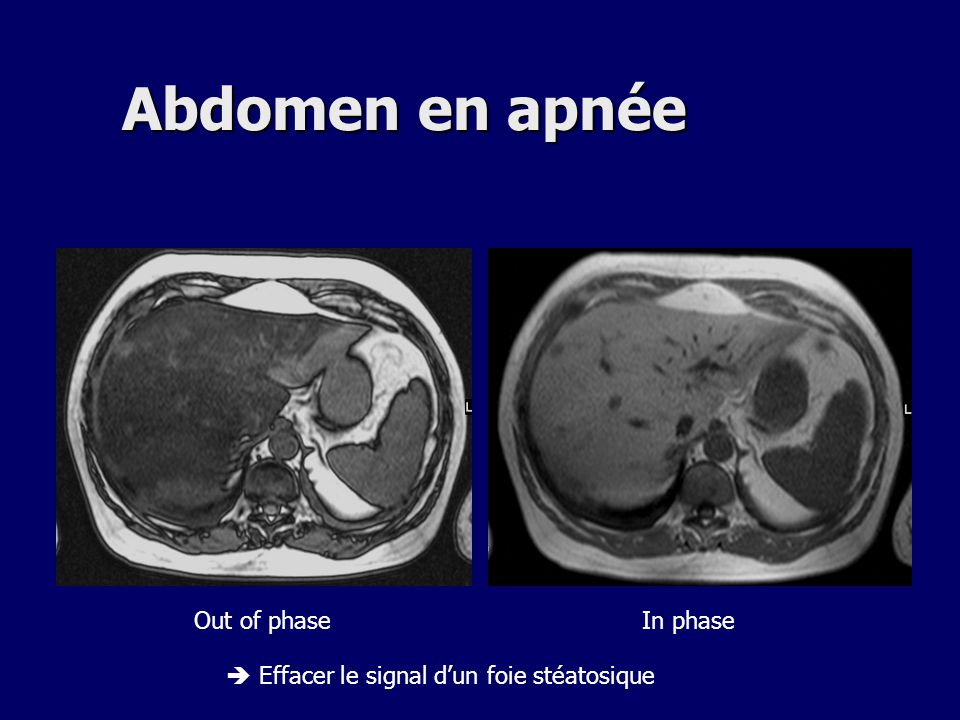 Abdomen en apnée Out of phase In phase
