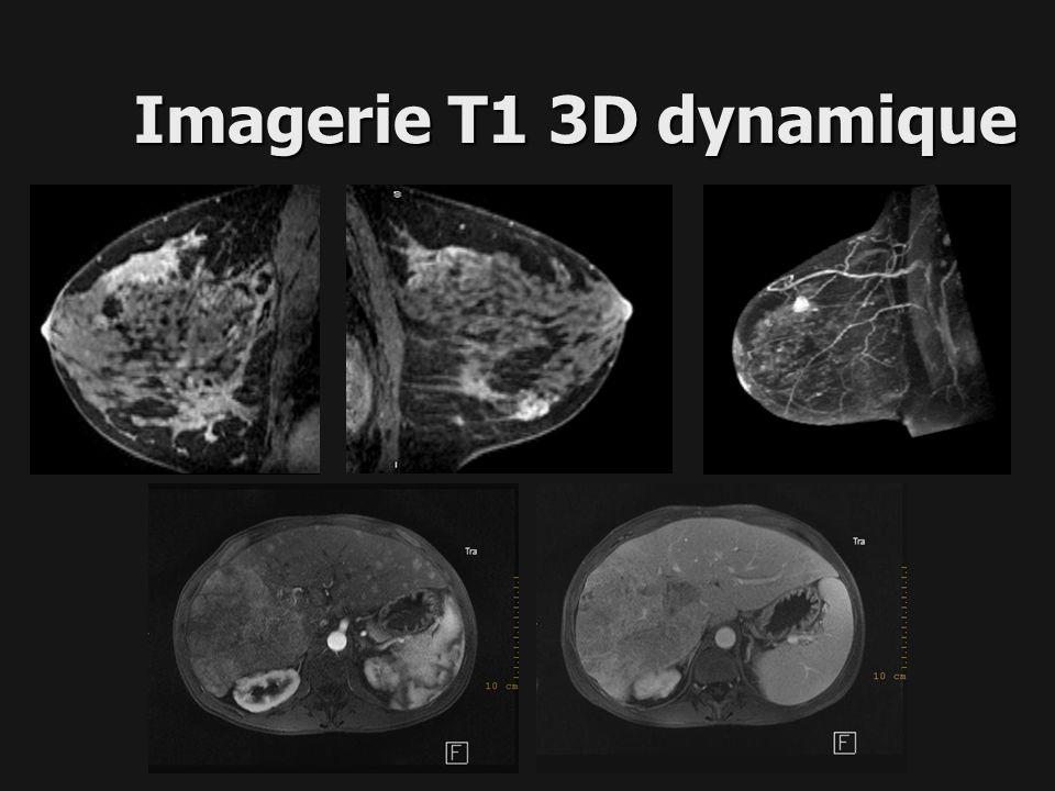 Imagerie T1 3D dynamique