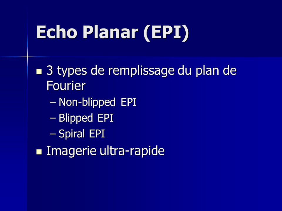 Echo Planar (EPI) 3 types de remplissage du plan de Fourier