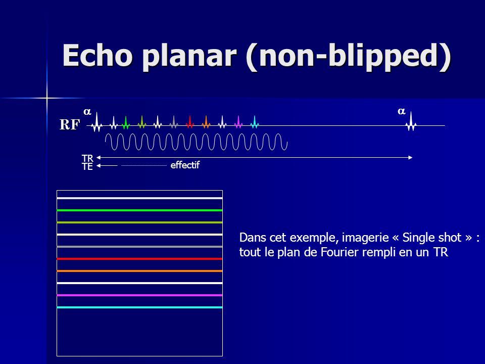 Echo planar (non-blipped)