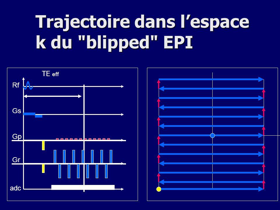Trajectoire dans l'espace k du blipped EPI