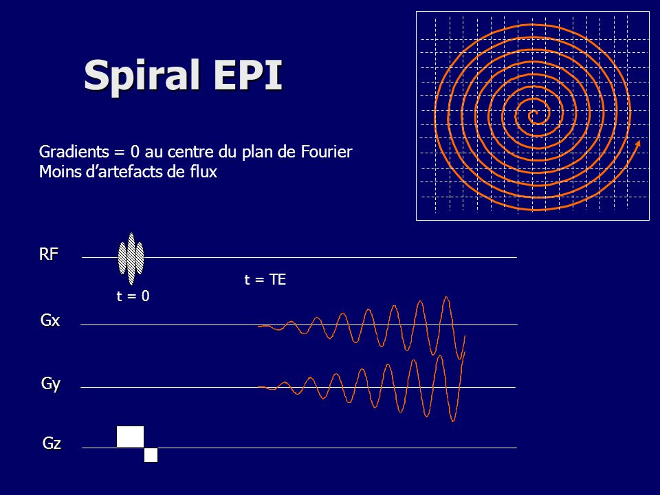 Spiral EPI Gradients = 0 au centre du plan de Fourier