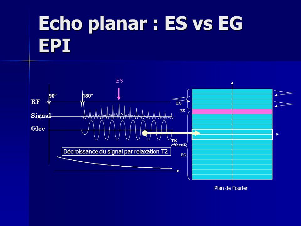 Echo planar : ES vs EG EPI