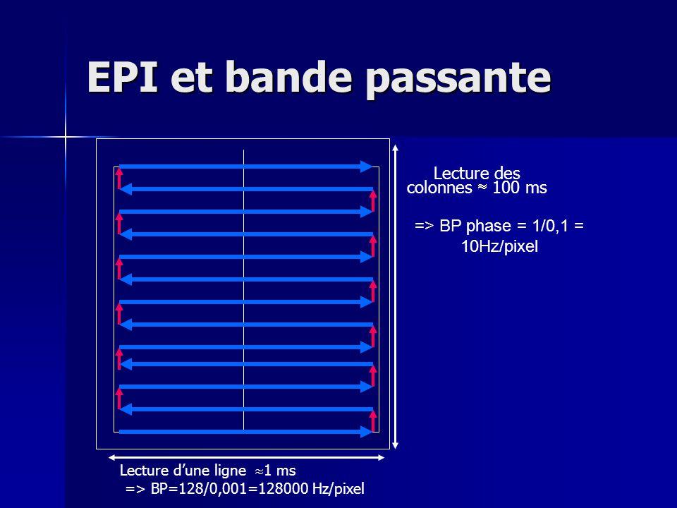 EPI et bande passante Lecture des colonnes  100 ms