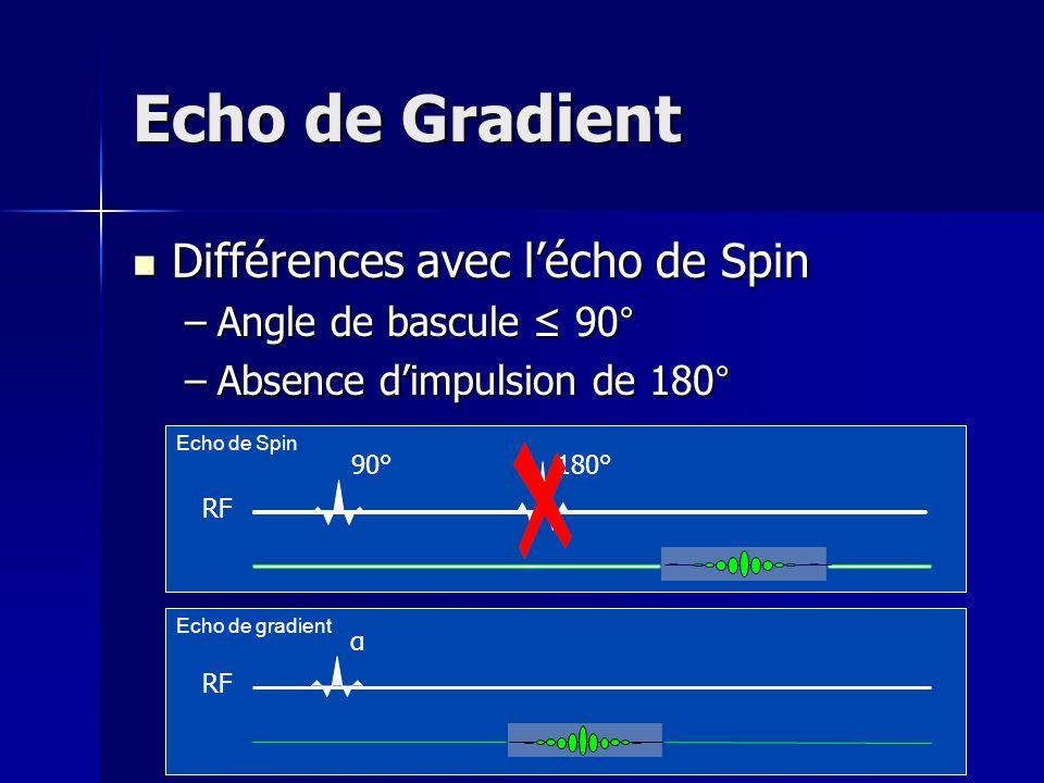 Echo de Gradient Différences avec l'écho de Spin