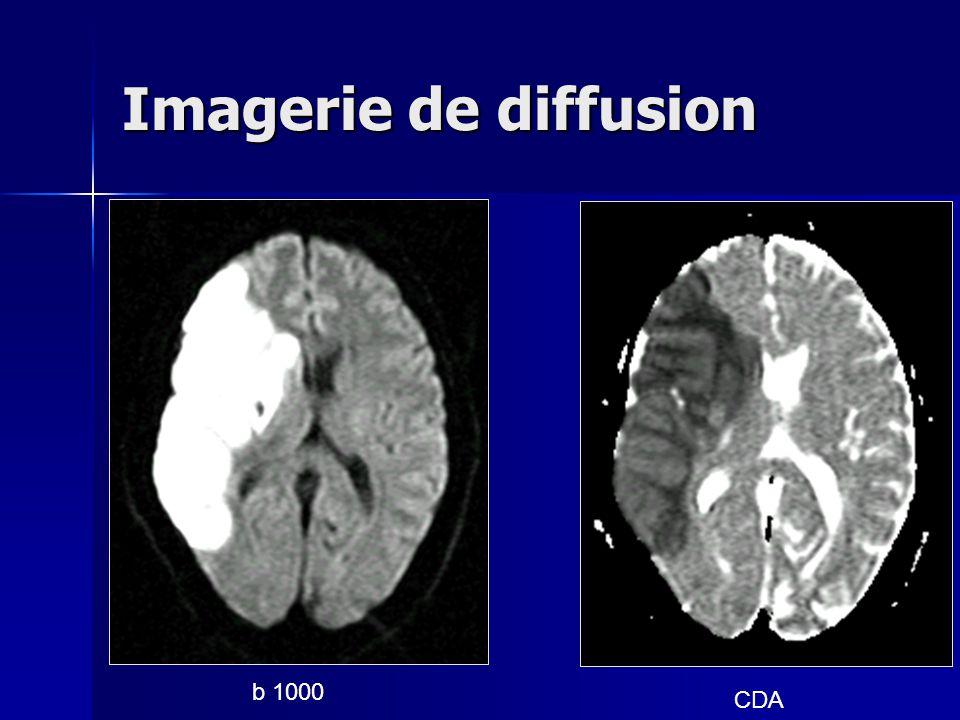 Imagerie de diffusion b 1000 CDA