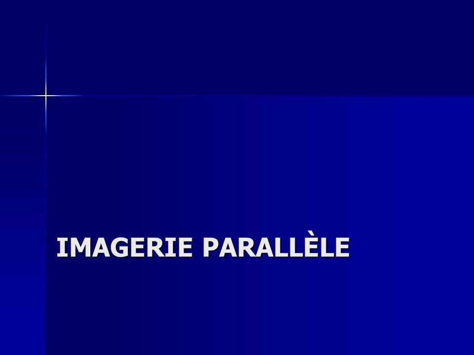 Imagerie parallèle