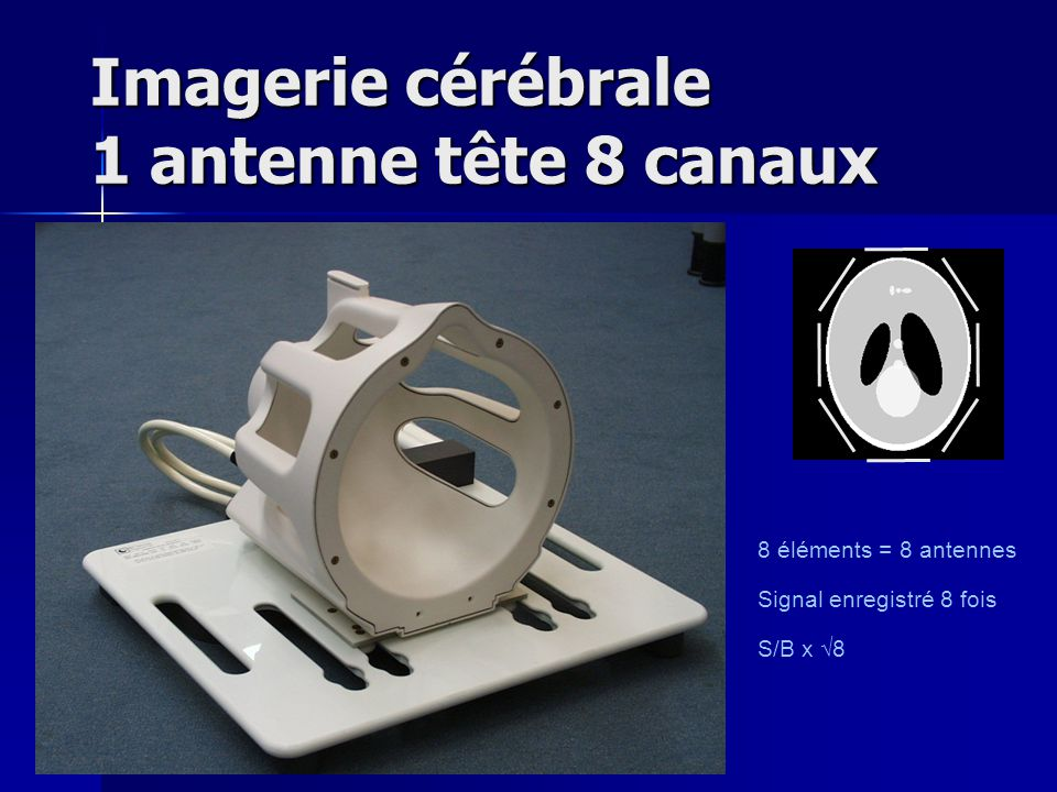 Imagerie cérébrale 1 antenne tête 8 canaux