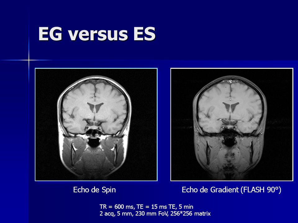 EG versus ES Echo de Spin Echo de Gradient (FLASH 90°)