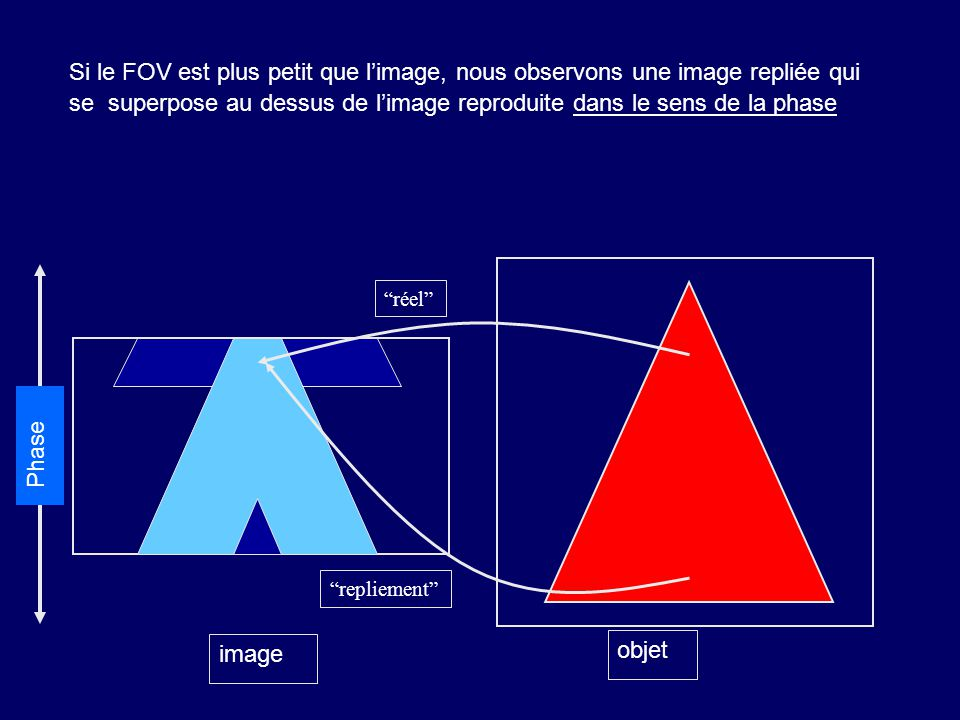 Si le FOV est plus petit que l'image, nous observons une image repliée qui se superpose au dessus de l'image reproduite dans le sens de la phase