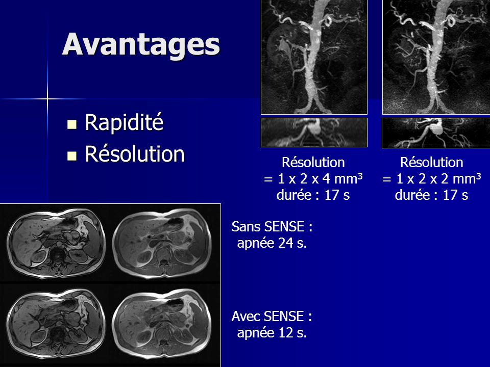 Avantages Rapidité Résolution Résolution = 1 x 2 x 4 mm3 durée : 17 s
