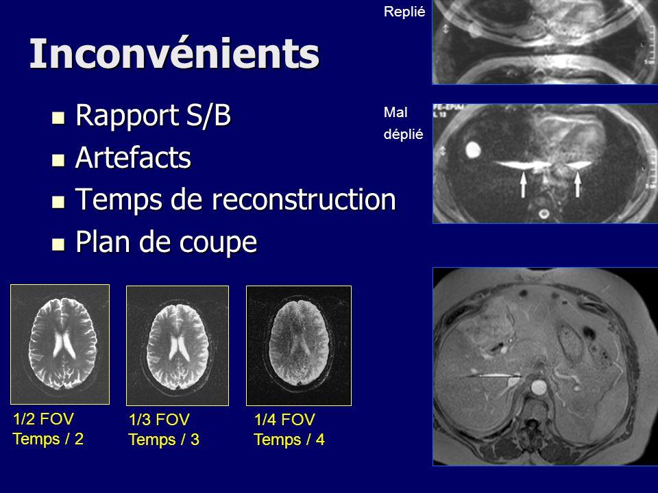 Inconvénients Rapport S/B Artefacts Temps de reconstruction