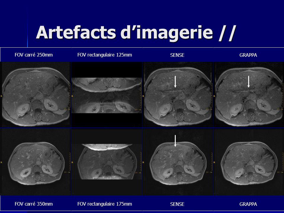 Artefacts d'imagerie //