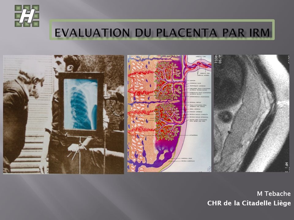 Evaluation du PLACENTA par IRM