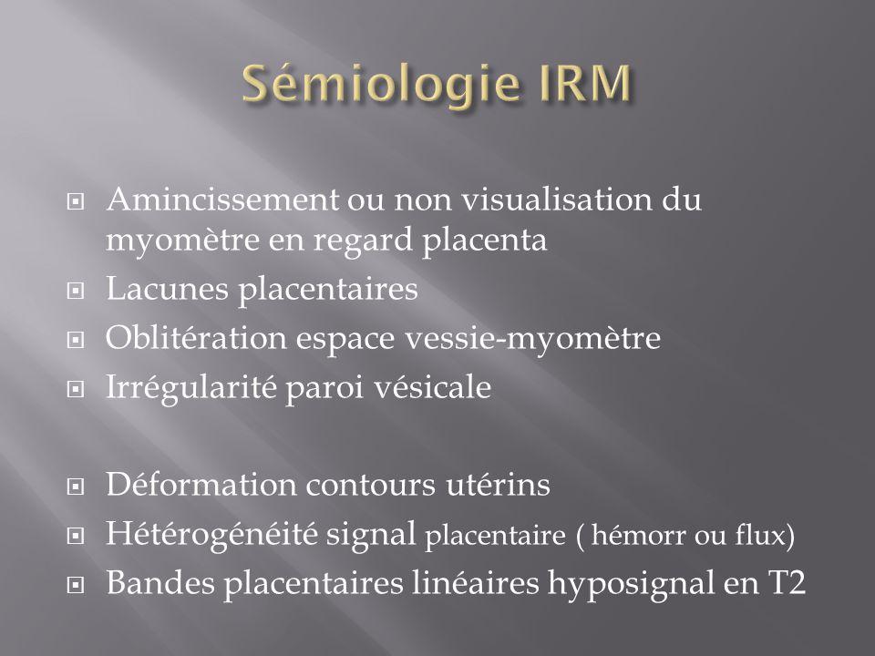Sémiologie IRM Amincissement ou non visualisation du myomètre en regard placenta. Lacunes placentaires.