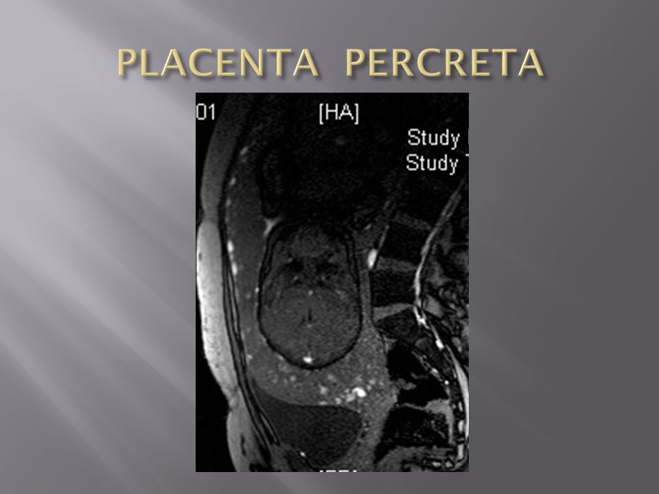 PLACENTA PERCRETA