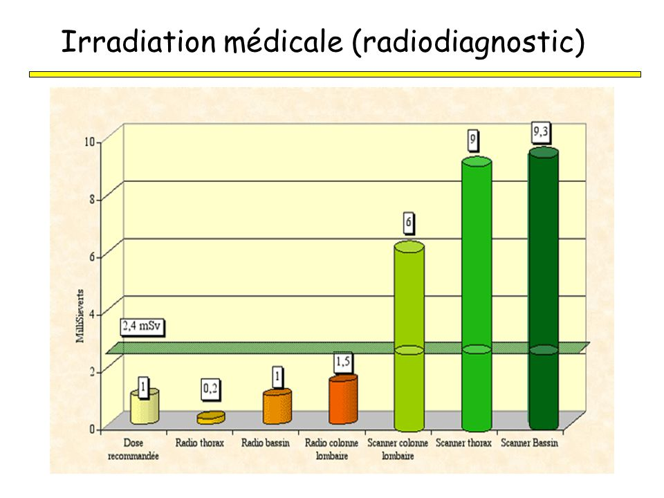 Irradiation médicale (radiodiagnostic)