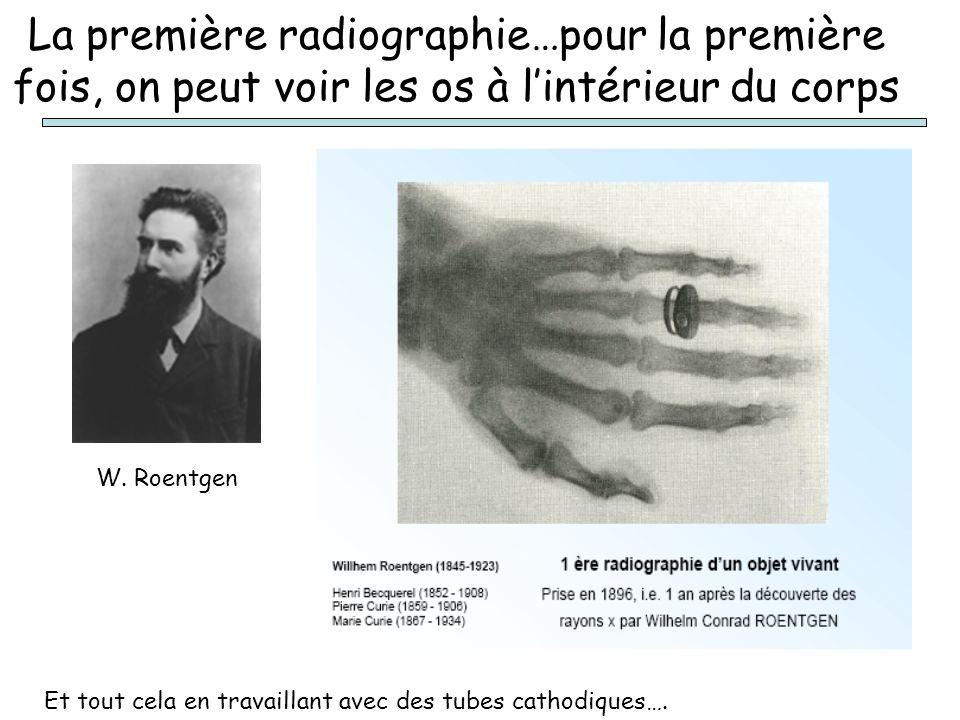La première radiographie…pour la première fois, on peut voir les os à l'intérieur du corps