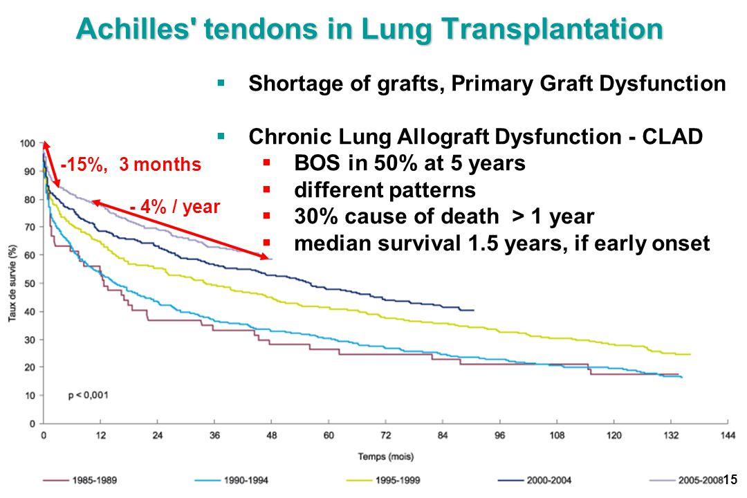 Achilles tendons in Lung Transplantation