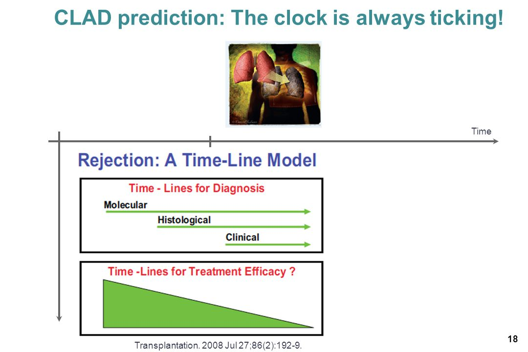 CLAD prediction: The clock is always ticking!