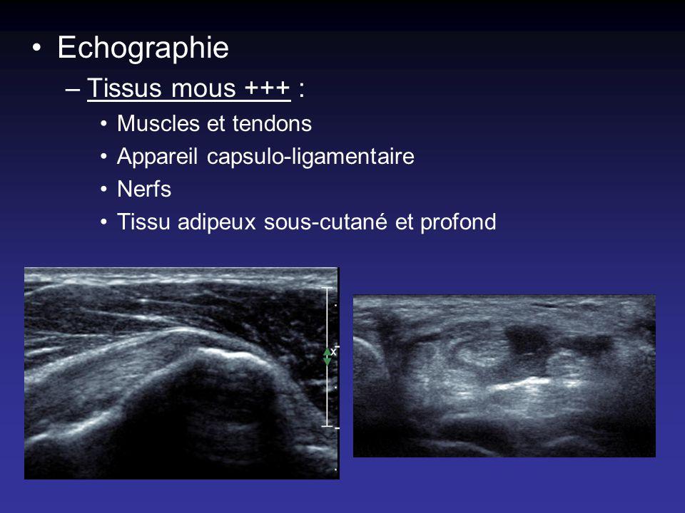Echographie Tissus mous +++ : Muscles et tendons