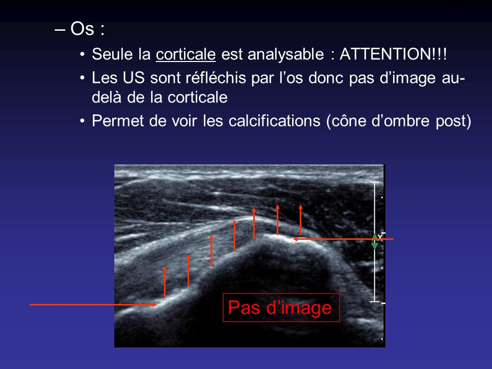 Os : Pas d'image Seule la corticale est analysable : ATTENTION!!!