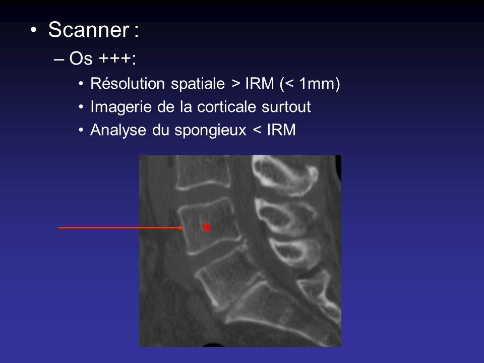* Scanner : Os +++: Résolution spatiale > IRM (< 1mm)