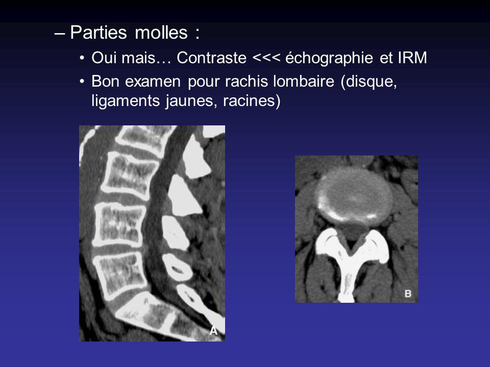 Parties molles : Oui mais… Contraste <<< échographie et IRM