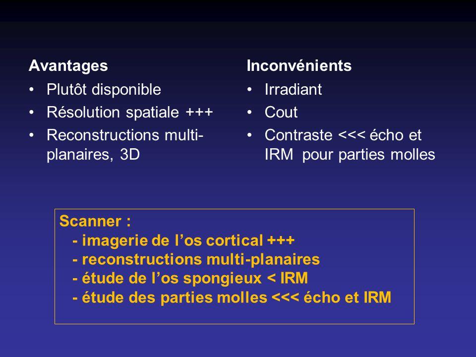 Avantages Inconvénients. Plutôt disponible. Résolution spatiale +++ Reconstructions multi-planaires, 3D.
