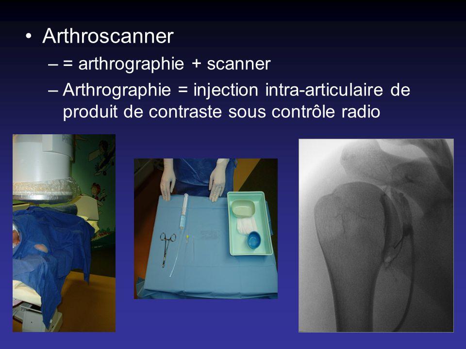 Arthroscanner = arthrographie + scanner